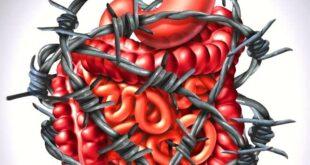 النظام الغذائي السليم للقولون العصبي