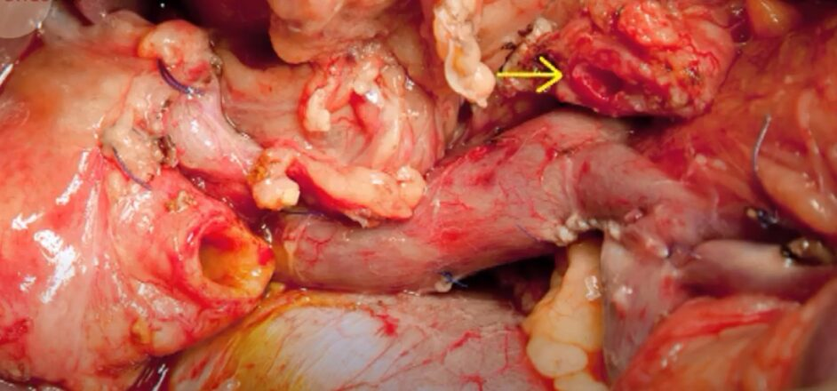 البنكرياس Pancreas